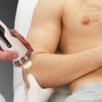 shock wave therapy device being used on a man's elbow